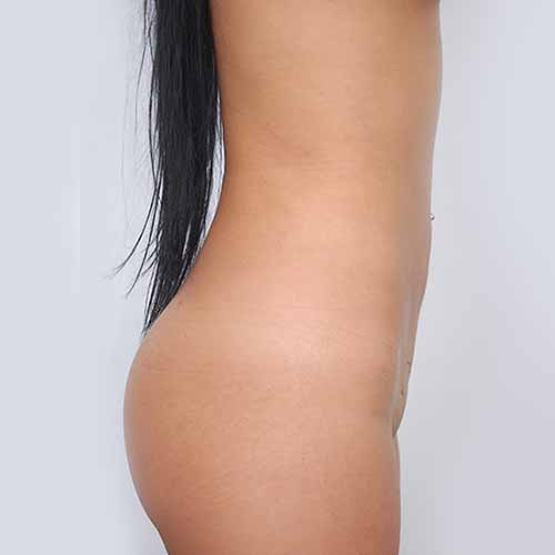 Liposuction Patient - After Picture